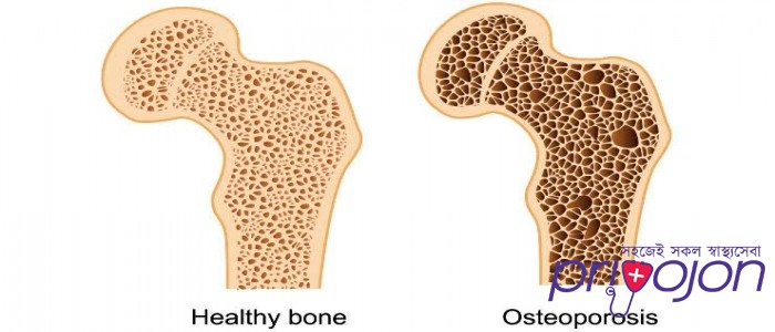 osteoporosis-symptom-treatment-and-causes