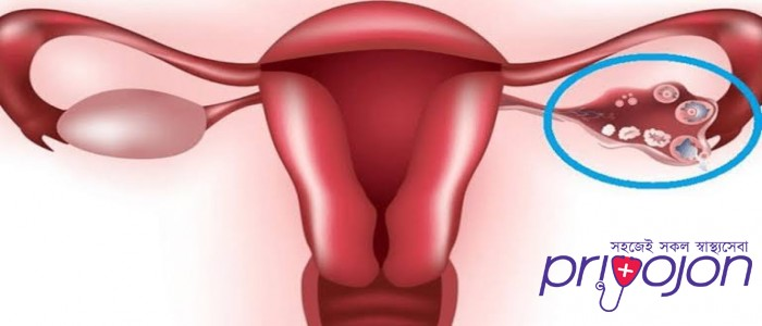 ovarian-cysts-treatment-procedure-cost-and-side-effects