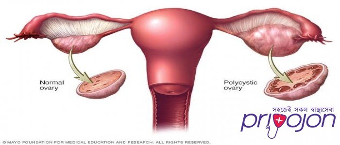 pcos-symptom-treatment-and-causes