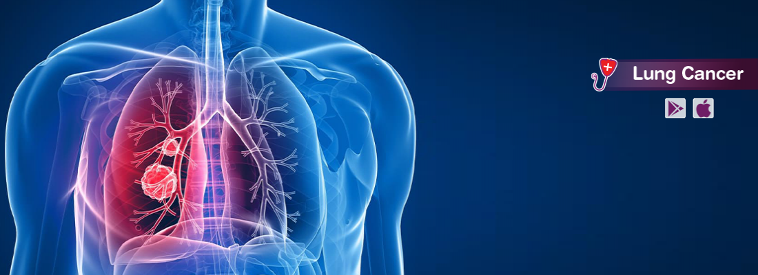 all-you-need-to-know-about-lung-cancer