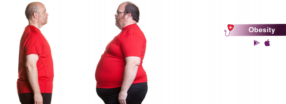 obesity-symptom-treatment-and-causes